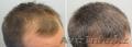 Средство от выпадения волос миноксидил 5% - Изображение #2, Объявление #1576194